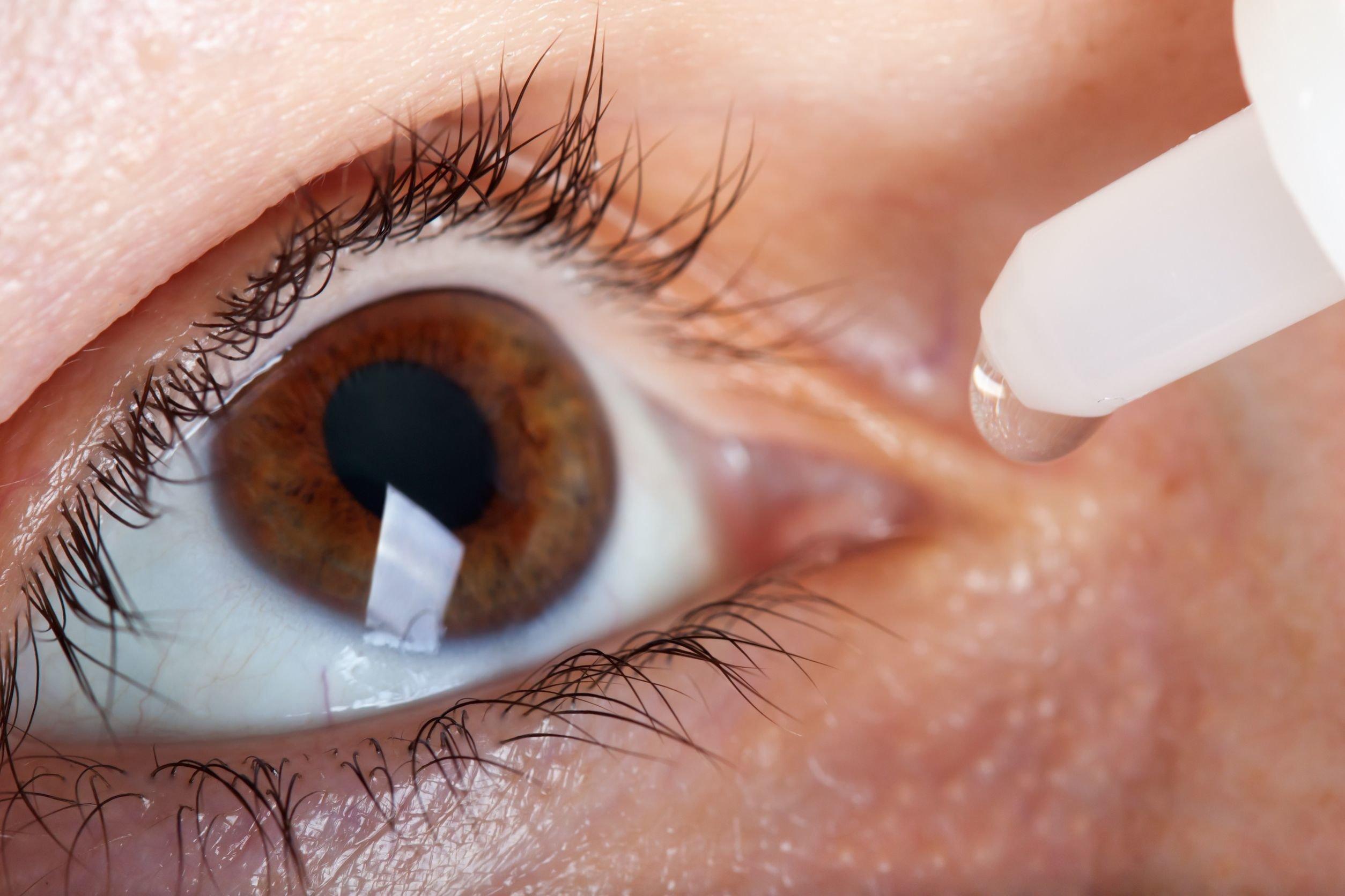 2c65c8a01b Consejos para prevenir el síndrome del ojo seco - Enfermedades Y ...