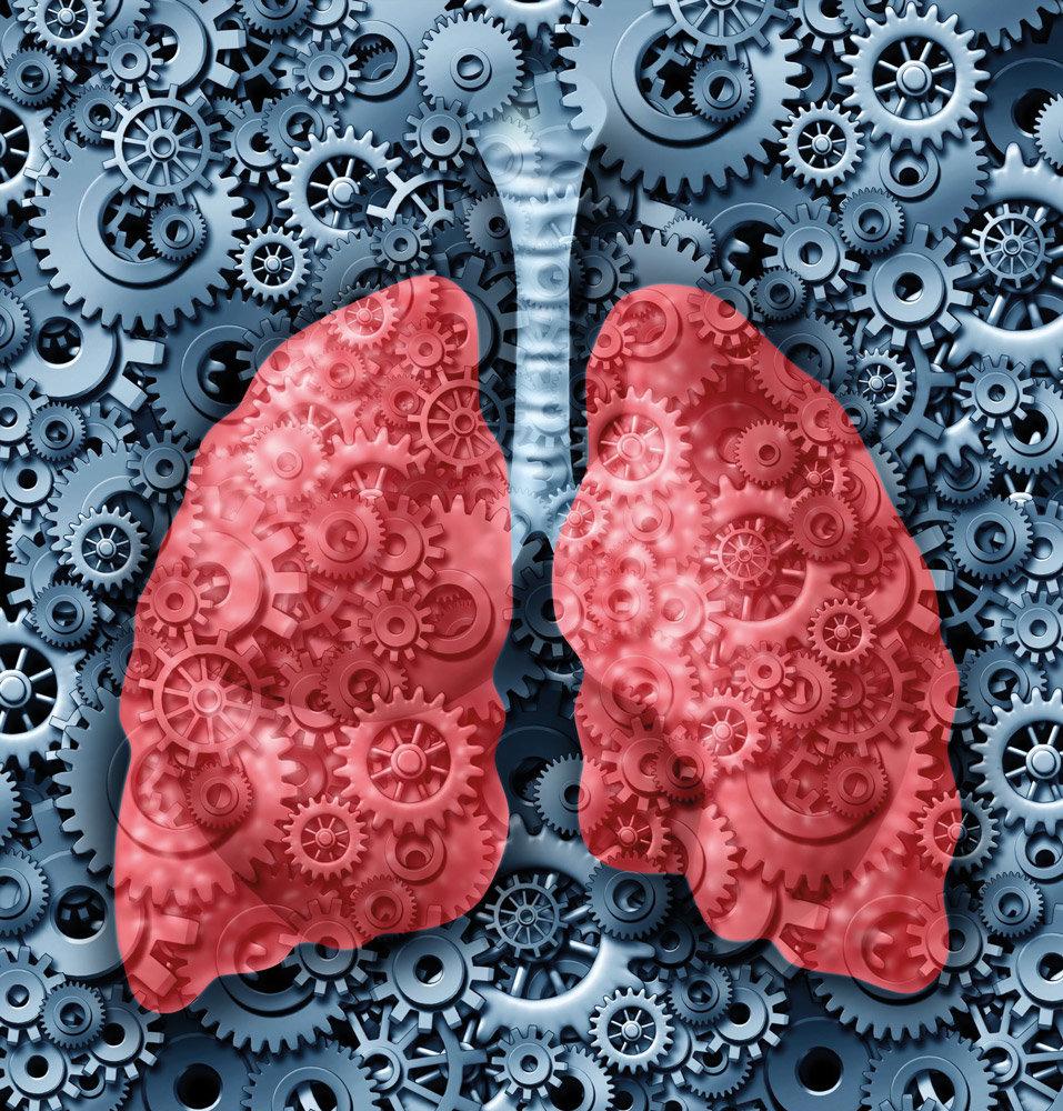 bronconeumonía en adultos mayores