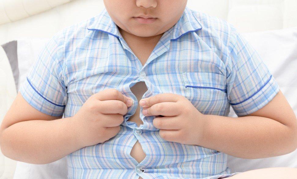 Resultado de imagen de niños obesos