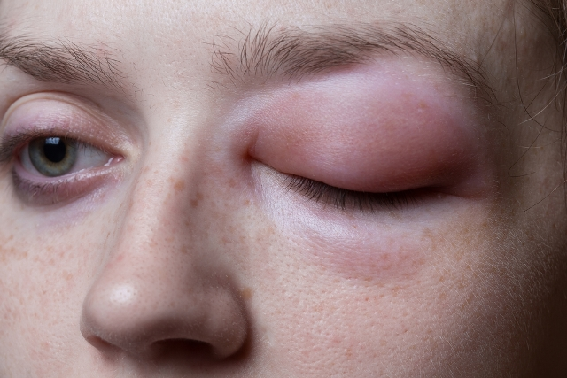 Young woman with allergic reaction